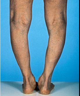 GAIT legs problem